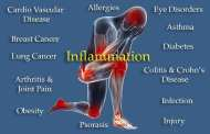 Did we just find an off switch for inflammation?