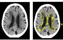 More accurate brain scan diagnosis for strokes and dementia using artificial intelligence