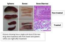 A cure for acute leukemia within reach?