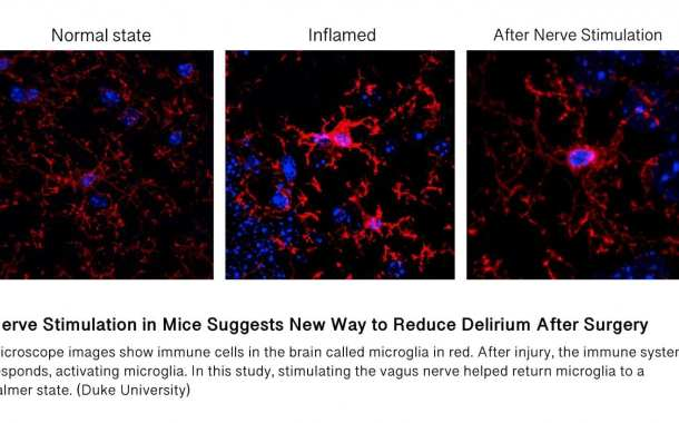 A new way to reduce delirium after surgery
