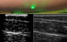 First laser ultrasound images of humans makes in-home physiological imaging a soon-to-be reality