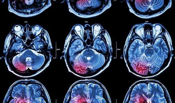 Using ultrasound to blast through the blood-brain barrier to fight glioblastoma