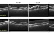 Individualizing treatment for diabetes related vision loss using artificial intelligence