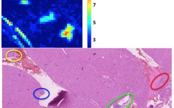 New way to detect early-stage cancer