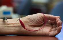 Could electroacupuncture tamp down systemic inflammation in the body?