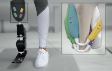 Better control of prosthetic limbs using magnets