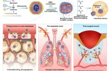 Smart nanomachines can detect and treat highly invasive cancer after surgery
