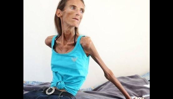 photo of Anorexia