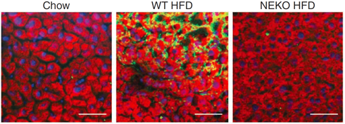 neutrophil infiltration in hepatic tissue