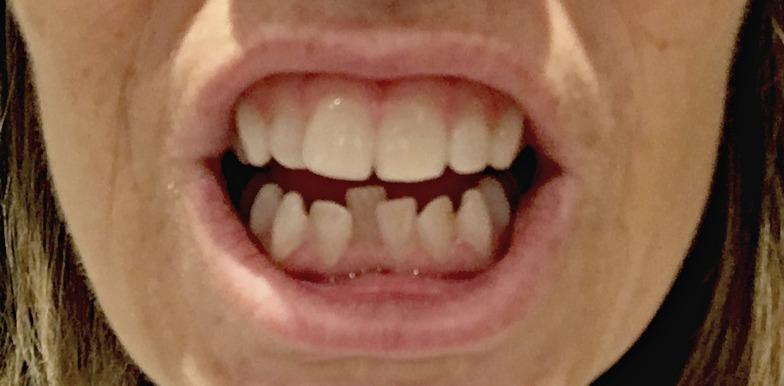 Wonky teeth before Invisalign