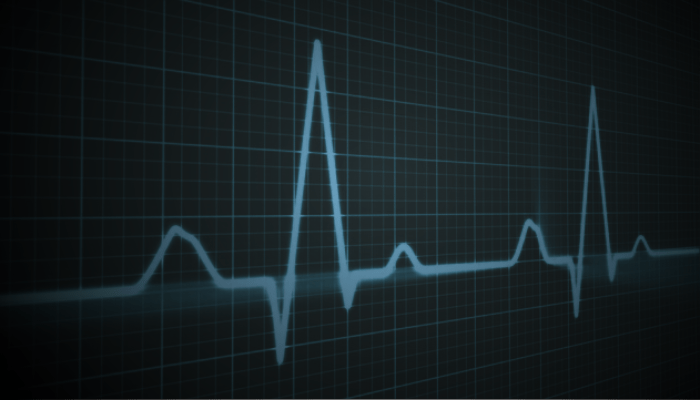 Don't Miss a Beat: Arrhythmia Detection for Preclinical ECG Research