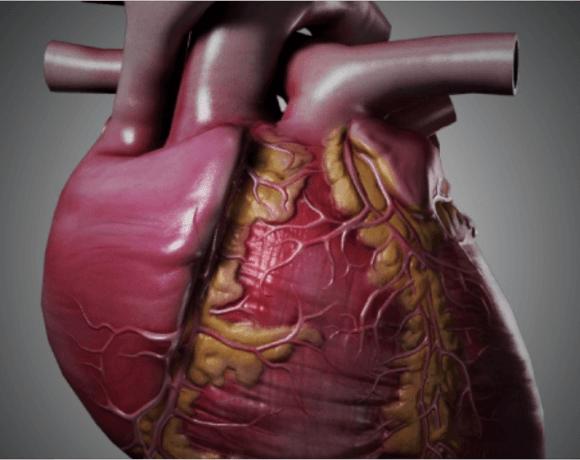 WEBINAR SERIES – PV Loops to Measure Cardiac Function 2014