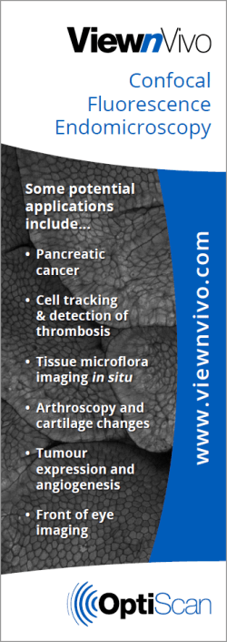 ViewnVivo - Confocal Fluorescence Endomicroscopy