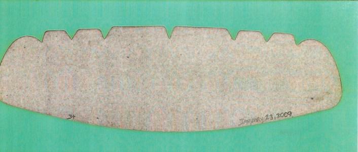 False Teeth 3, Jefre Harwoods. 2009