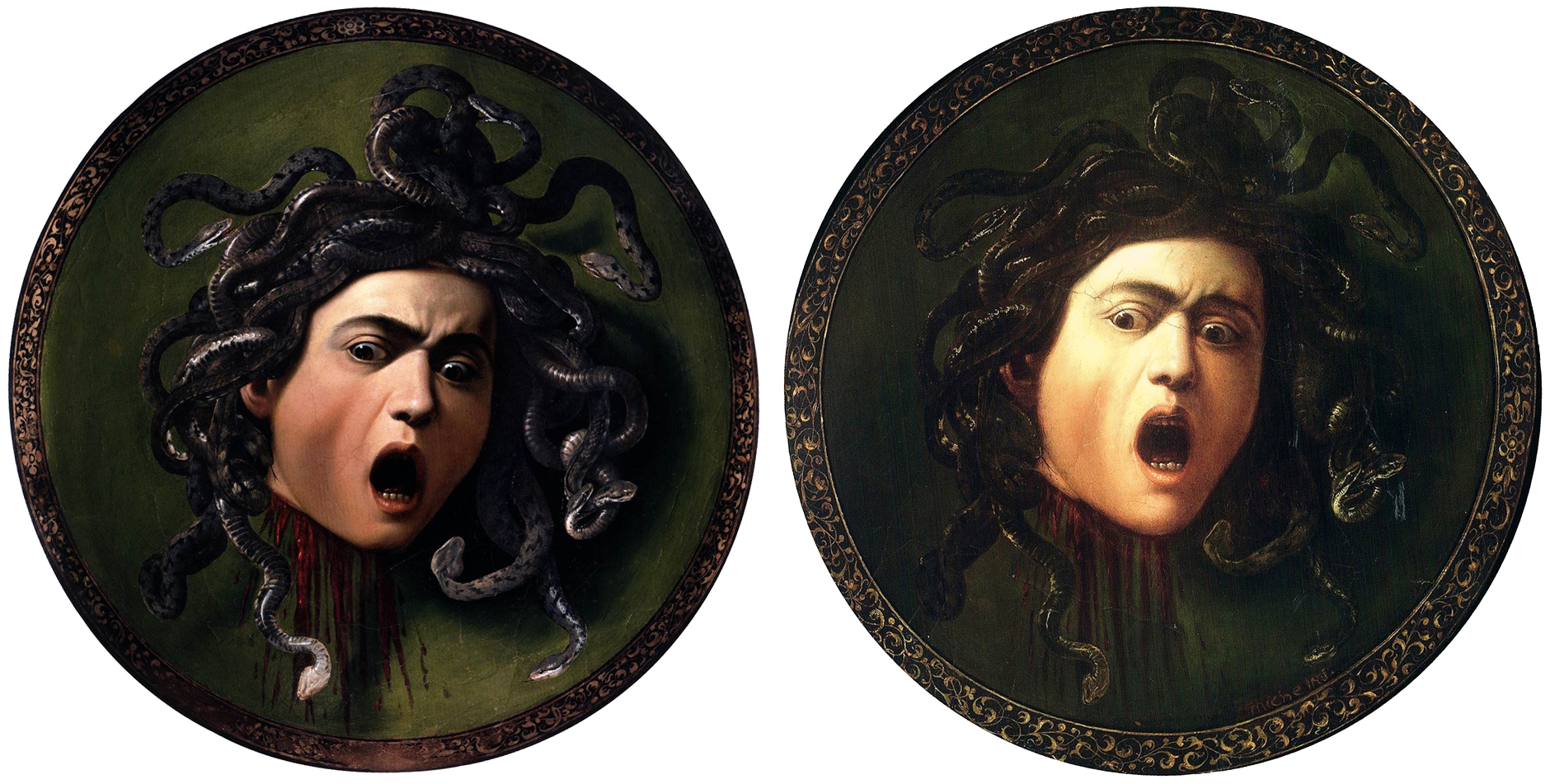 Caravaggio-Meduse-Medusa-insight-coaching-art, colère, hatred, anger