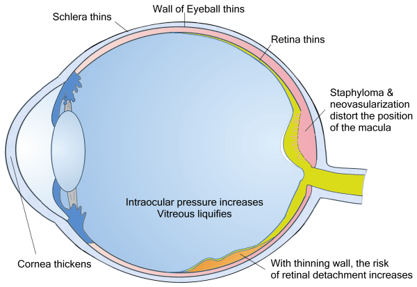 Pathological Myopia Diagram from Natural Eye Center