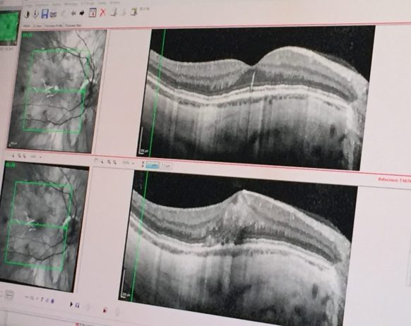 Myopic Macular Degeneration OCT Scan comparing the current and previous appointment.