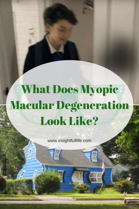 What does myopic Macular Degeneration Look Like? pinterest image