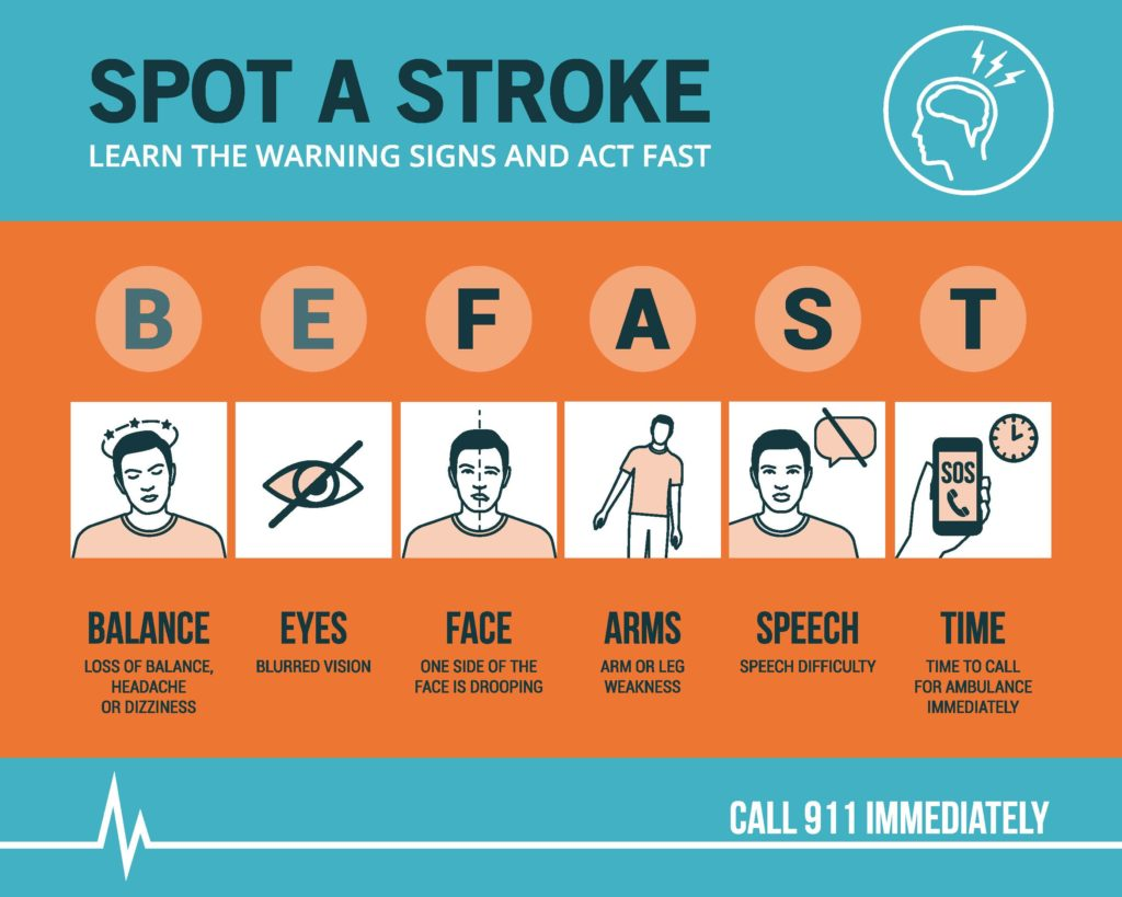 Be FAST when it comes to stroke