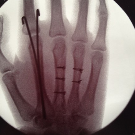 Fractured hand