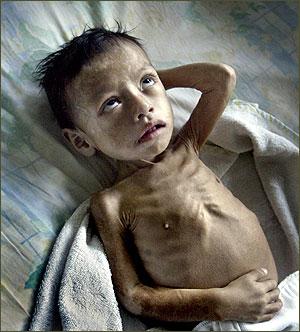 child malnutrition P1XAs 3868