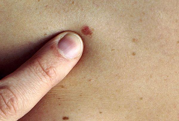 skin malignancy