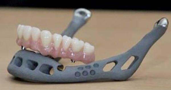 3D printed jawbone