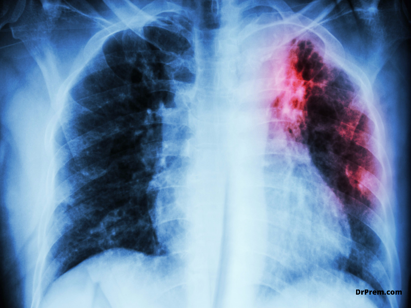 Reasons favoring the rise in drug-resistant TB