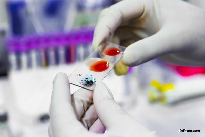 serology test