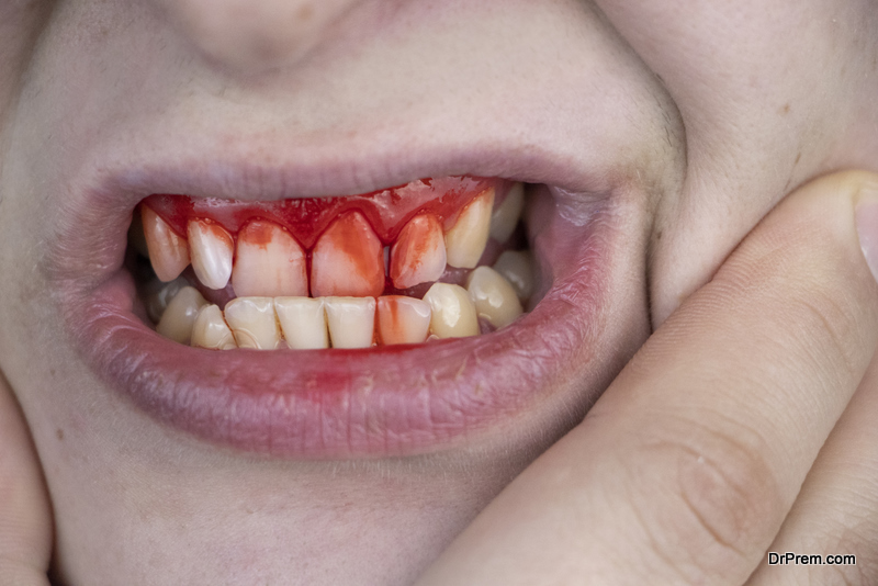 Dental luxation