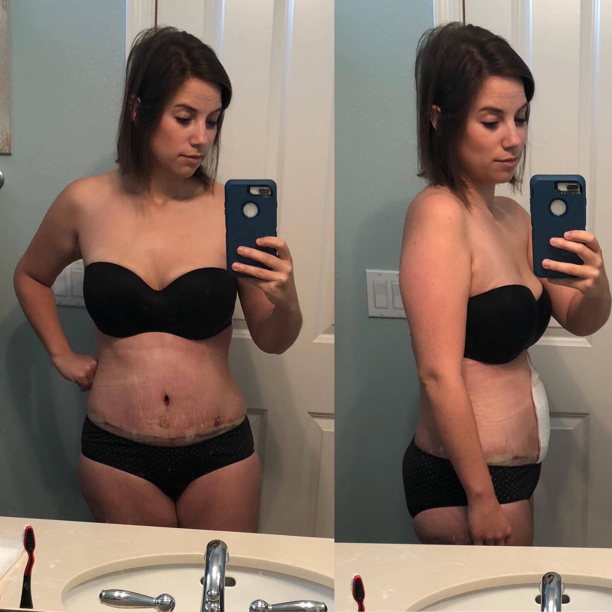Abdominoplasty Healing Update W1 instantloss.com