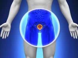 ts_140506_prostate_gland_800x600.jpg