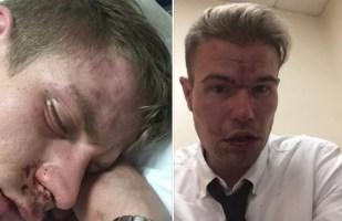 London-gay-couple-beaten-up-on-train.jpg