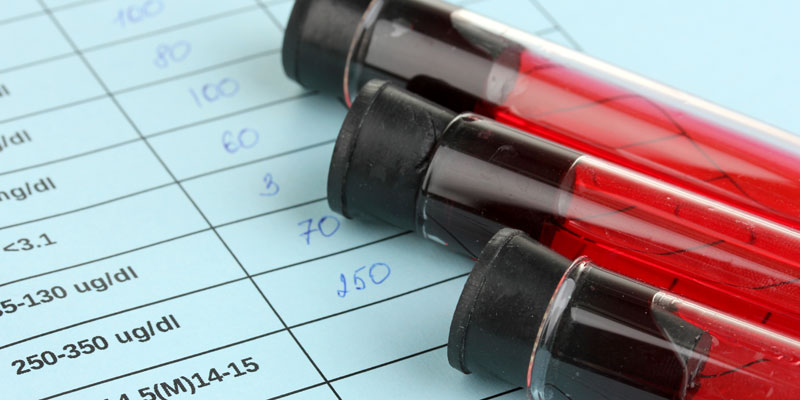 Stock image of vials of blood via Depositphotos