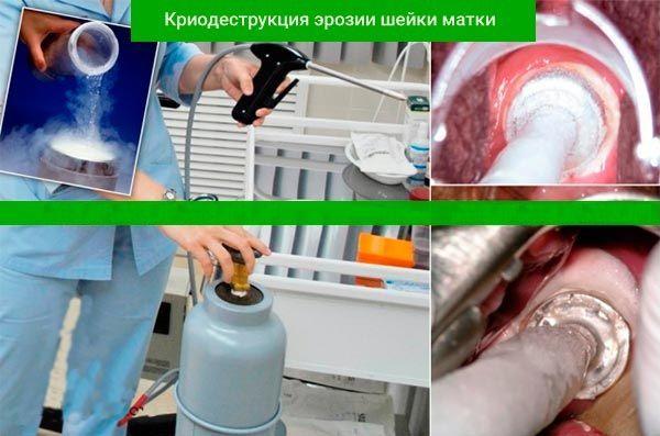 Kryodestrukce