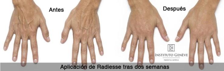 Aplicación de Radiesse en manos