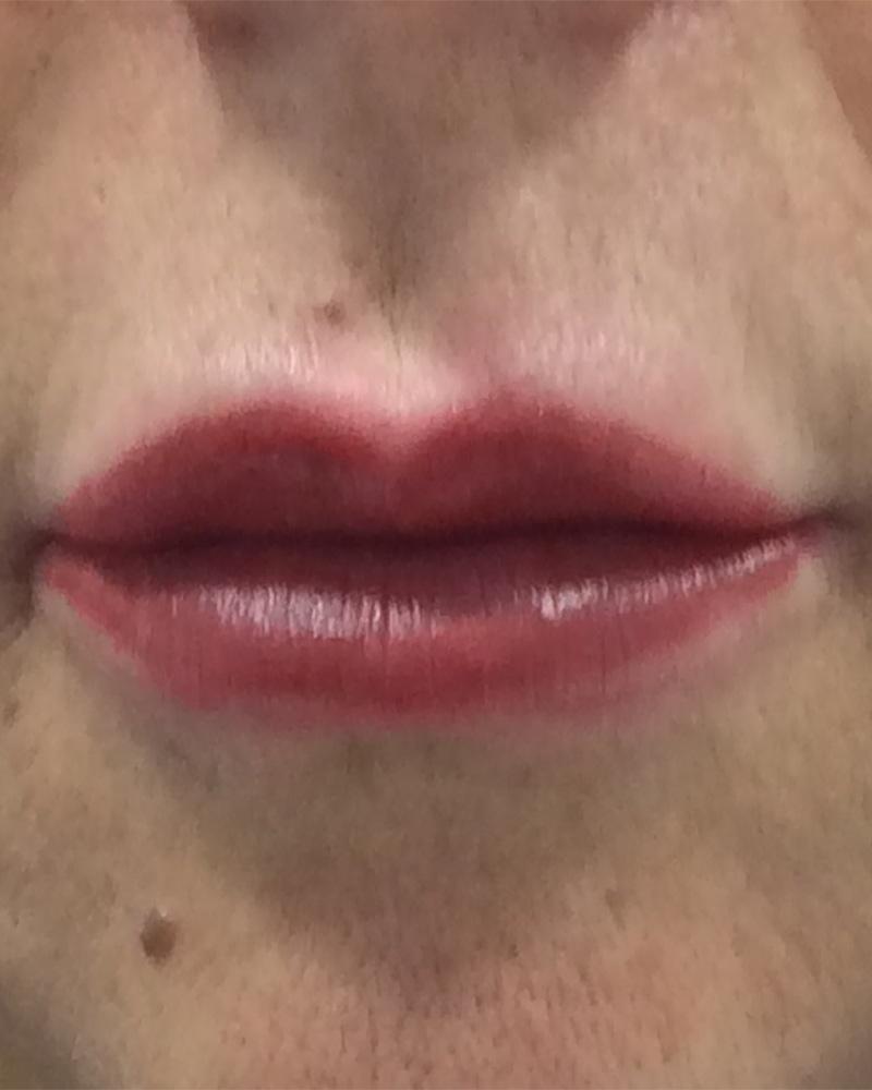 microbladin labios