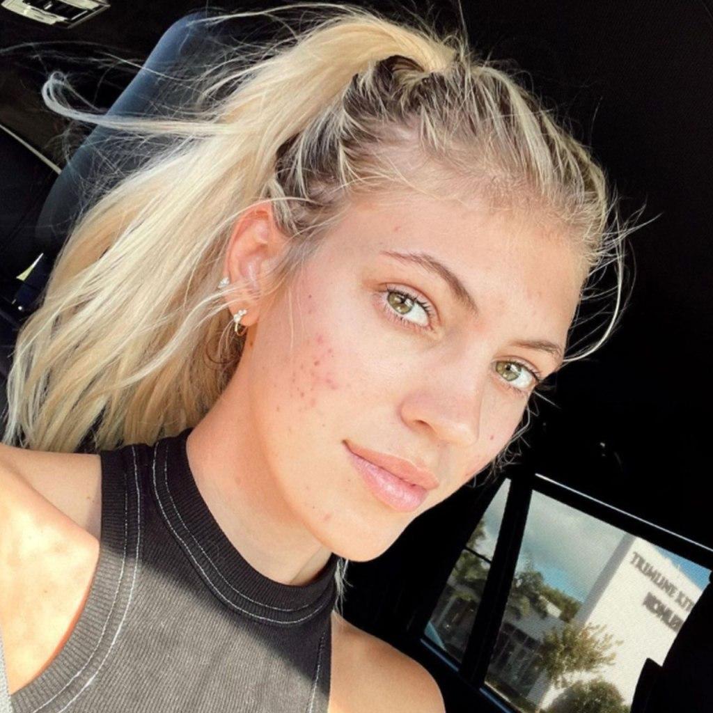 ¿Qué se siente tener acné siendo modelo? Este ángel de Victoria's Secret lo revela