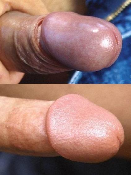 Having Sex Uncircumcised Nude Porn Pics Archive Hardcore