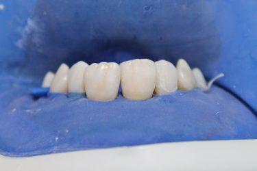 Restauração Estética Low Res 2