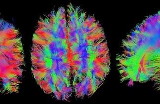 Resonancia magnética del cerebro