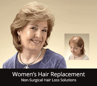 womens-hair-replacement-rochester-ny