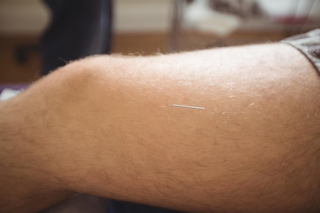 Acupuncture Coral Springs for Arthritis