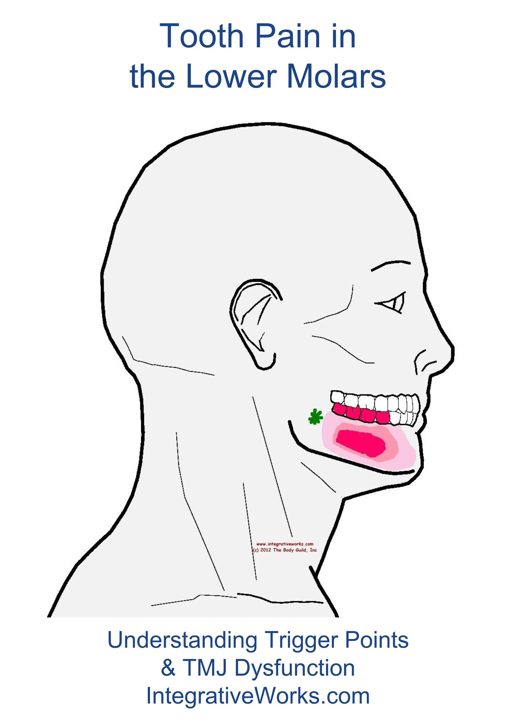 Trigger Points, Pain of Lower Teeth, Jaw | Integrative Works