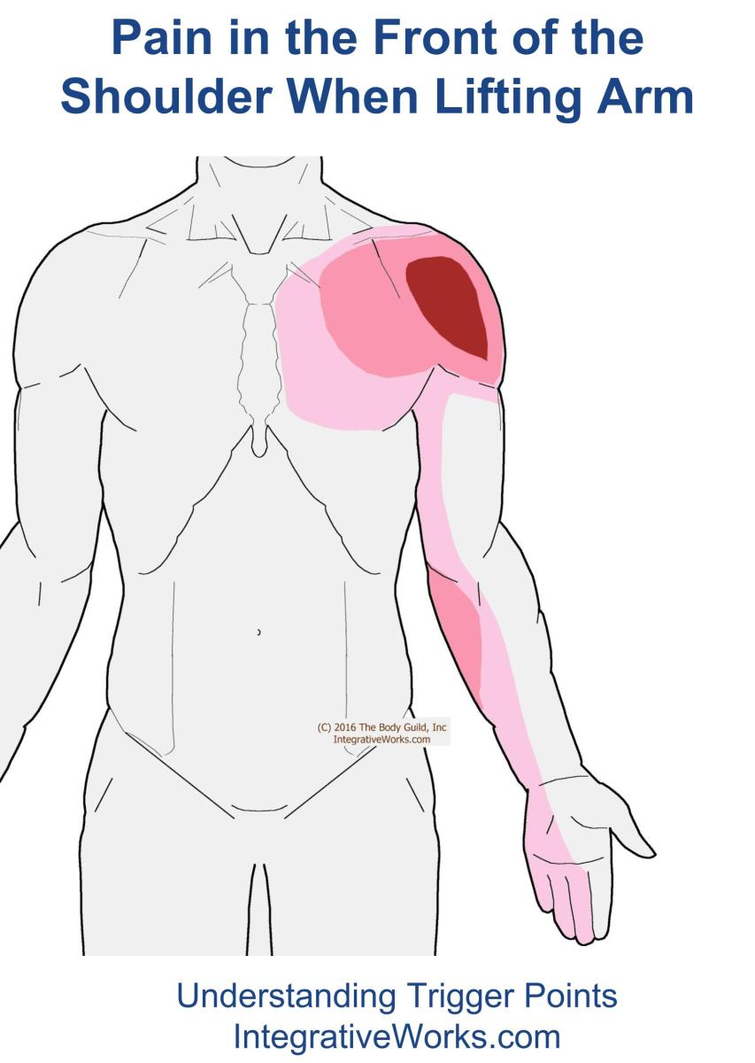 Trigger Points - Pain in the Front of Shoulder When Lifting Arm