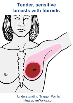 fi-tender-sensitive-breasts-with-fibroids