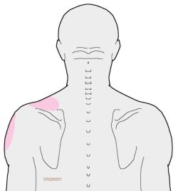 referral-posterior-biceps-brachii-cropped