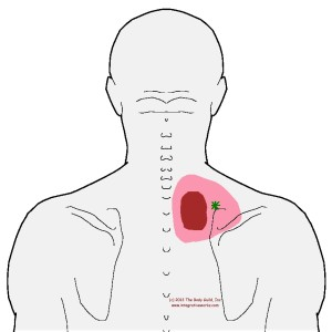 referral - trapezius - middle - root
