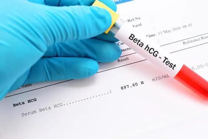 Blood test pregnancy