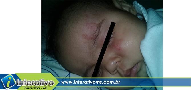Bebê de seis meses é vítima de agressão em Ceinf de Paranaíba